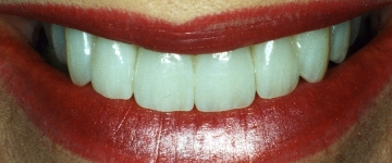 Cosmetic dentistry by an artistic cosmetic dentist