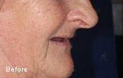 Cosmetic Dentures Before After Pics